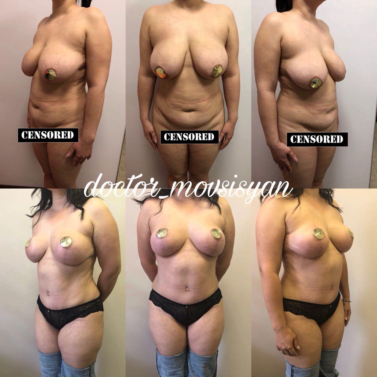 Якорная подтяжка груди + Абдоминопластика