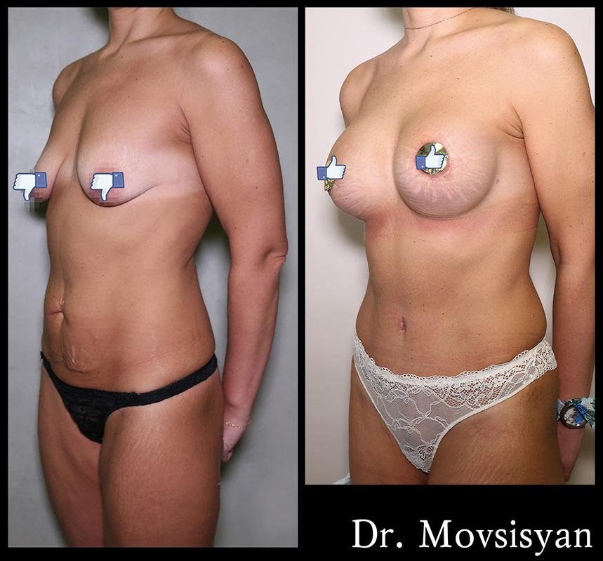 Абдоминопластика + Подтяжка груди с увеличением имплантами Natrelle 345мл