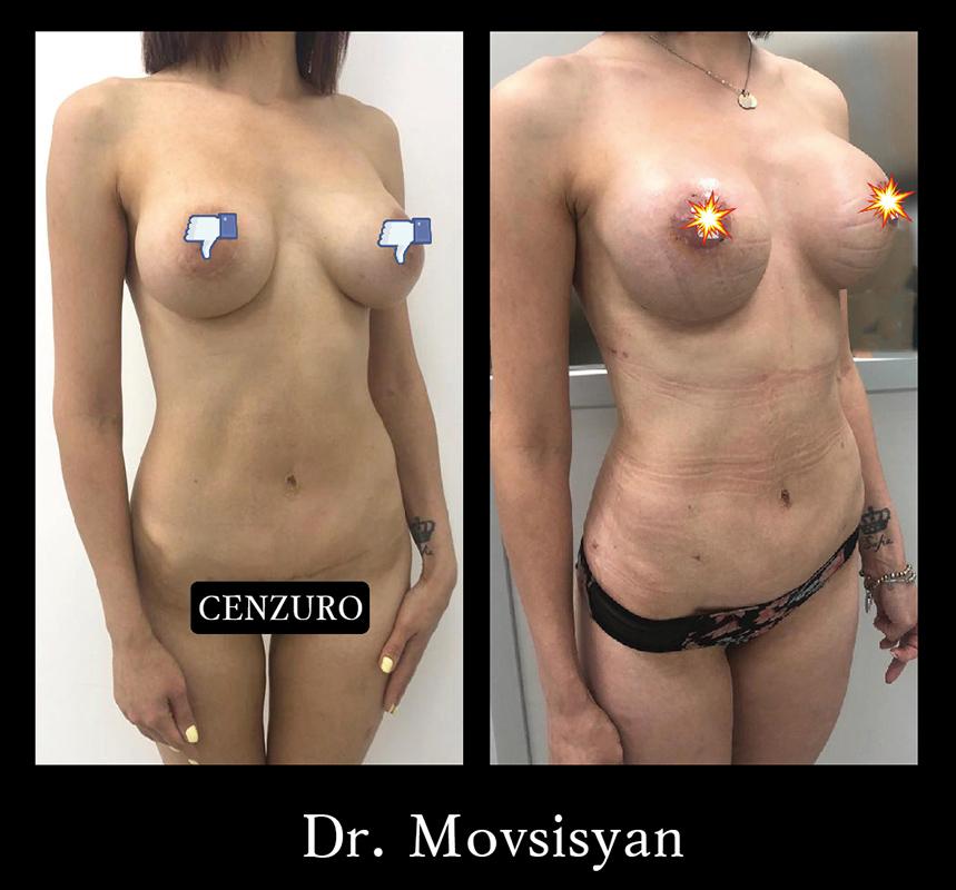 Рэндопротизирование груди. Замена круглого импланта 375 мл на 420 мл анатомической формы